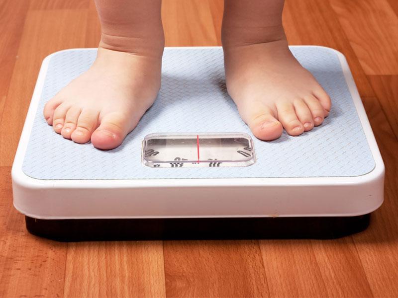 عوامل و الگوهایی که باعث چاقی مفرط در کودکان میشوند
