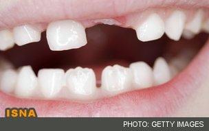 از دندانهای شیری محافظت کنید