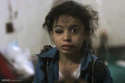 سوانح و حوادث مهمترین علت مرگ و میر کودکان زیر پنج سال است