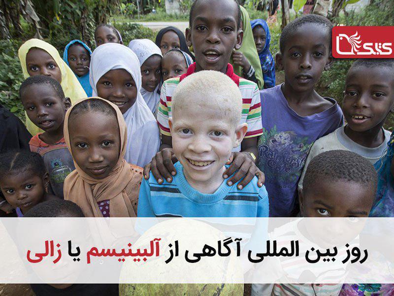 روز بینالمللی آگاهی از آلبینیسم یا زالی ۲۰۱۹